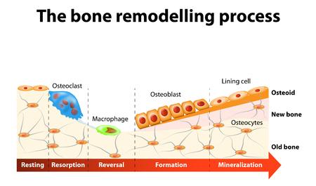 bone remodelng