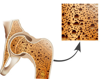 thinning bones