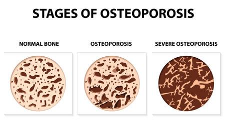 development of osteoporosis