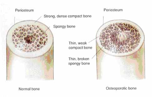 cross section of normal bone and osteoporotic bone